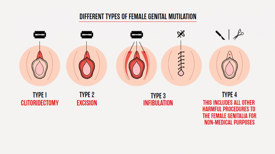 Fgm In Kurdistan Different Culture, Same Reasons As Mgm -6084
